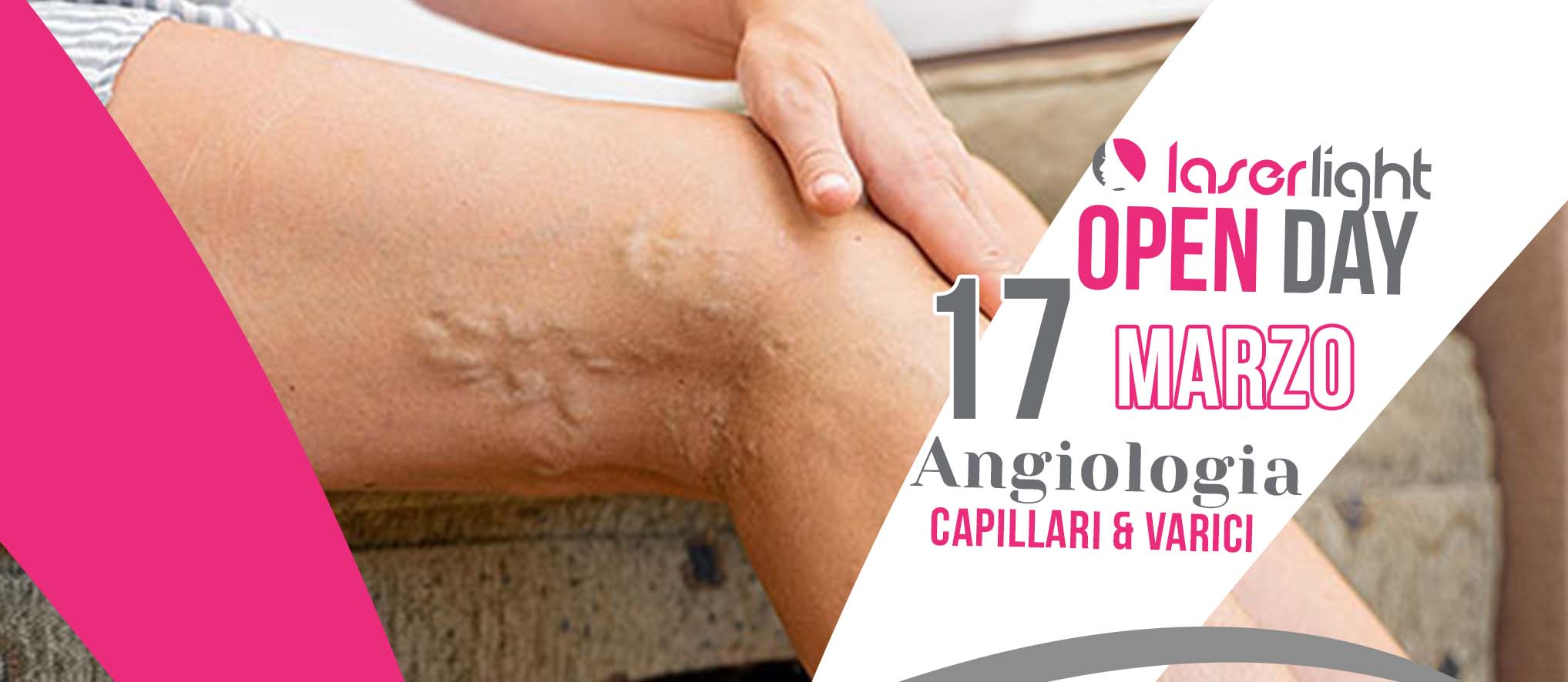 open day angiologia 17 marzo
